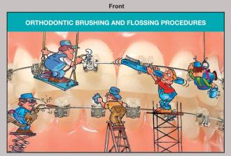 Orthodontic Brushing/Flossing Damon Cards 100/PK